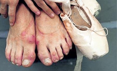 Обратная сторона медали - изуродованные ноги и угробленное здоровье