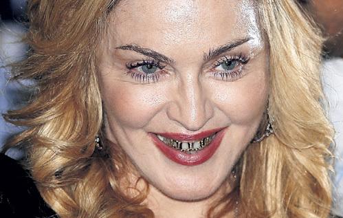 Золотые брекеты у МАДОННЫ всего лишь модный аксессуар, не имеющий отношения к ортодонтии