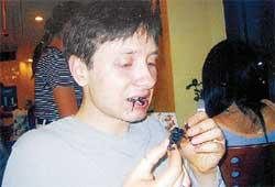 ЭКЗОТИЧЕСКИЙ ДЕЛИКАТЕС: не каждый отважится попробовать скорпиона