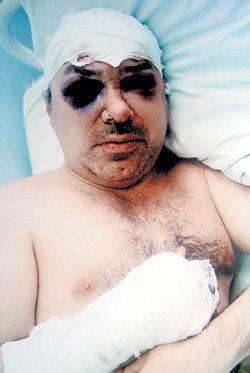 Георгий КУТУЗОВ умер, не дождавшись справедливости