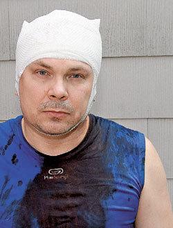 Во время «общения» с полицией Сергей ЗАЕЦ получил несколько ударов по голове...