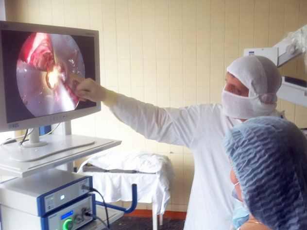 ВКирове медики впервый раз удалили опухоль мозга через пазухи носа