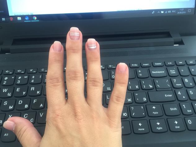 Мозоль на пальце от ручки Источник: EG.RU